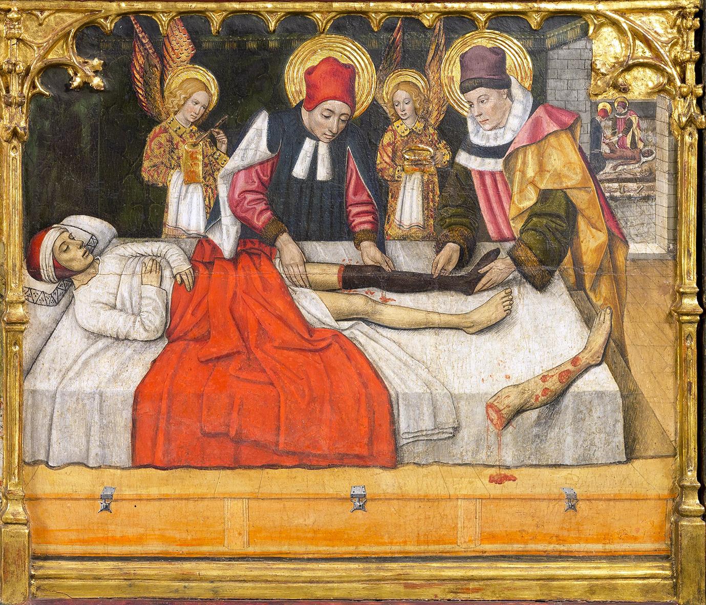 El miracle dels Sants Metges, Jaume Huguet, 1460. Retaule dels Sants Abdó i Senén. Sant Pere de Terrassa
